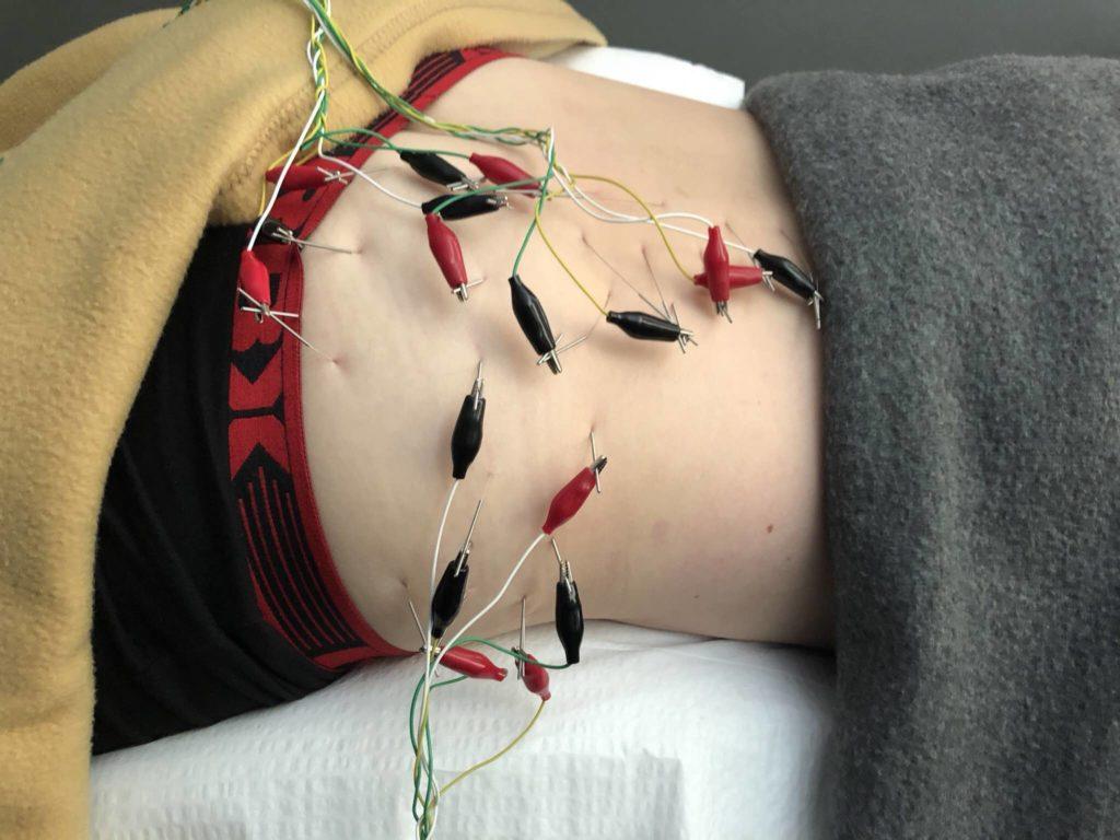 www.iamcalgary.ca I Am Calgary Paramedical Treatment Acupuncture